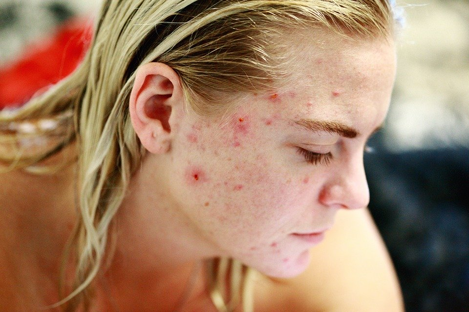 make acne sticky about the face