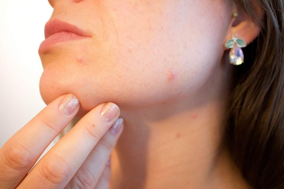 Top 10 Home Remedies For Acne Very Safe